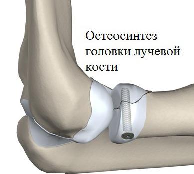könyökízületek artrózisának kezelése kenőcsök a mellkasi gerinc csontritkulásának kezelésére