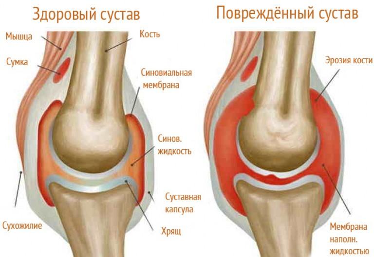 milyen betegség a bokaízület szinovitisz fáj a láb és a térd ízületei